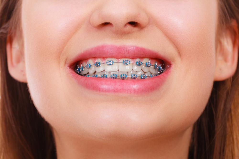 metal braces brooklyn